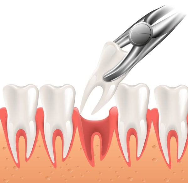 Tooth Extraction in Holladay, UT